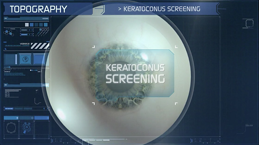 VX120-Hornhaut-Keratoconus-Screening b900